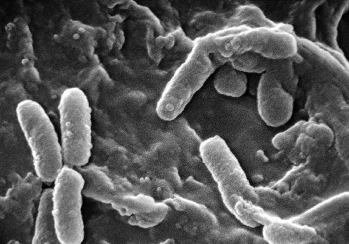 Pseudomonas Associated With Frequent Hospitalizations Due to COPD Exacerbations