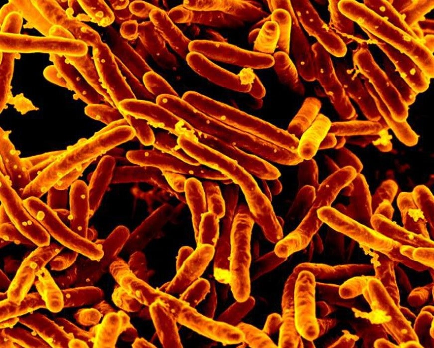 An analysis of 19 articles found that 3HP was as safe and effective as other recommended latent TB infection regimens. <i>Photo Credit: CDC PHIL/NIAID</i>