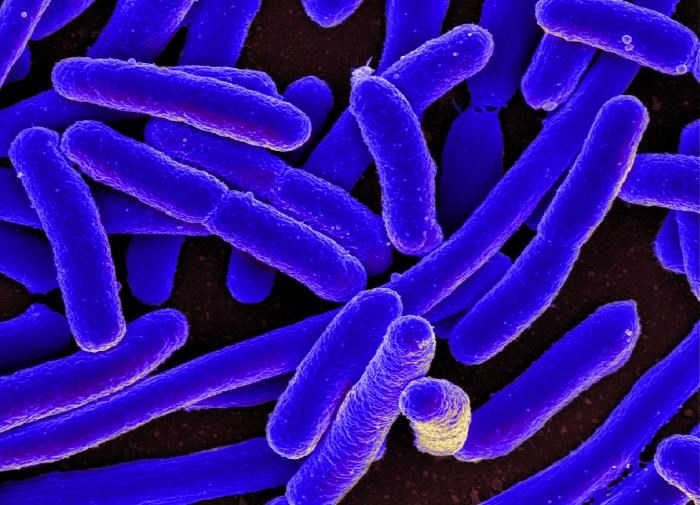 This was the largest E. coli food poisoning outbreak in the United States in more than a decade. <i> Photo credit: National Institute of Allergy and Infectious Diseases (NIAID)</i>