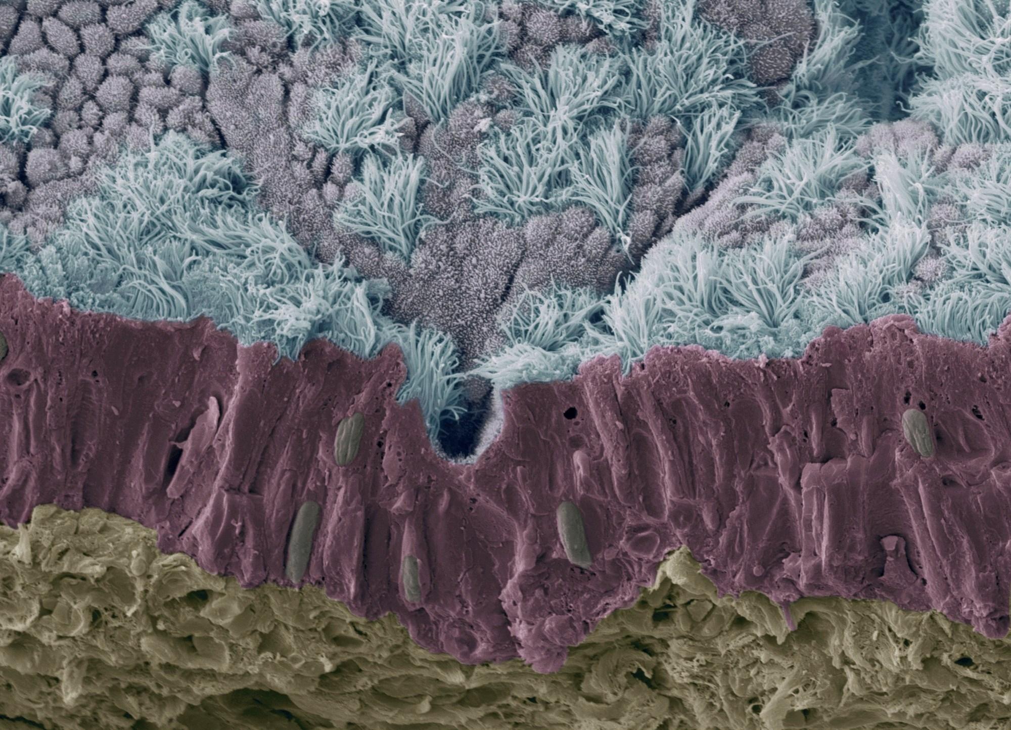 Tobramycin Efficacy Decreased by Human Airway Mucus