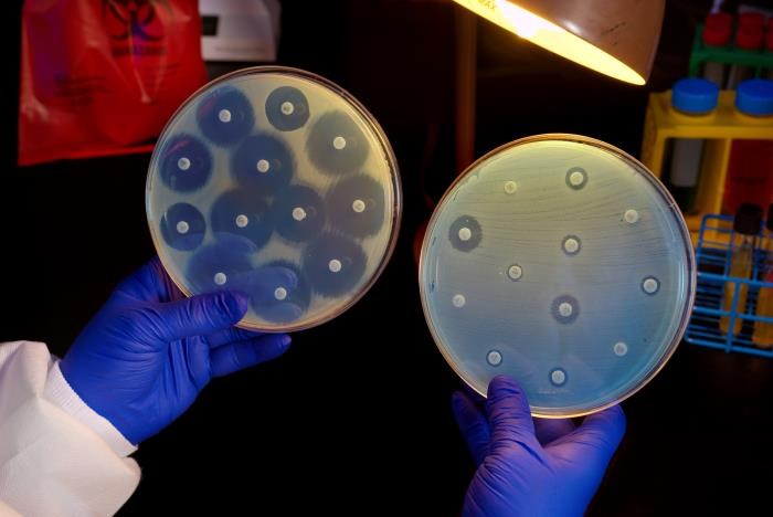 The initial course of antibiotic therapy was discordant with the isolate's susceptibility in nearly half of the participants, 26 of 56 cases. <i>Photo Credit: CDC/ Melissa Dankel</i>