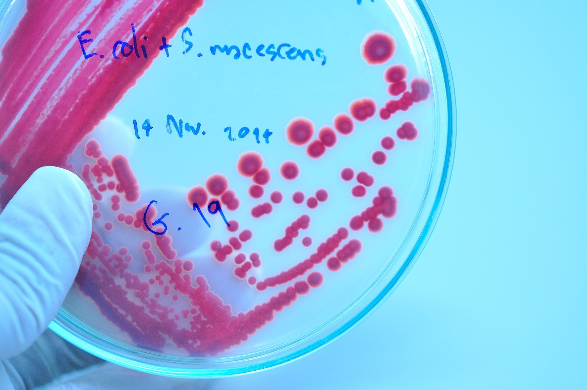 High Dose Pivmecillinam Effective for UTIs Caused by Resistant Escherichia coli
