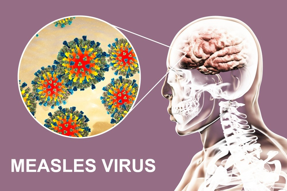 Decline of Subacute Sclerosing Panencephalitis Mortality Linked With Increased Vaccinations