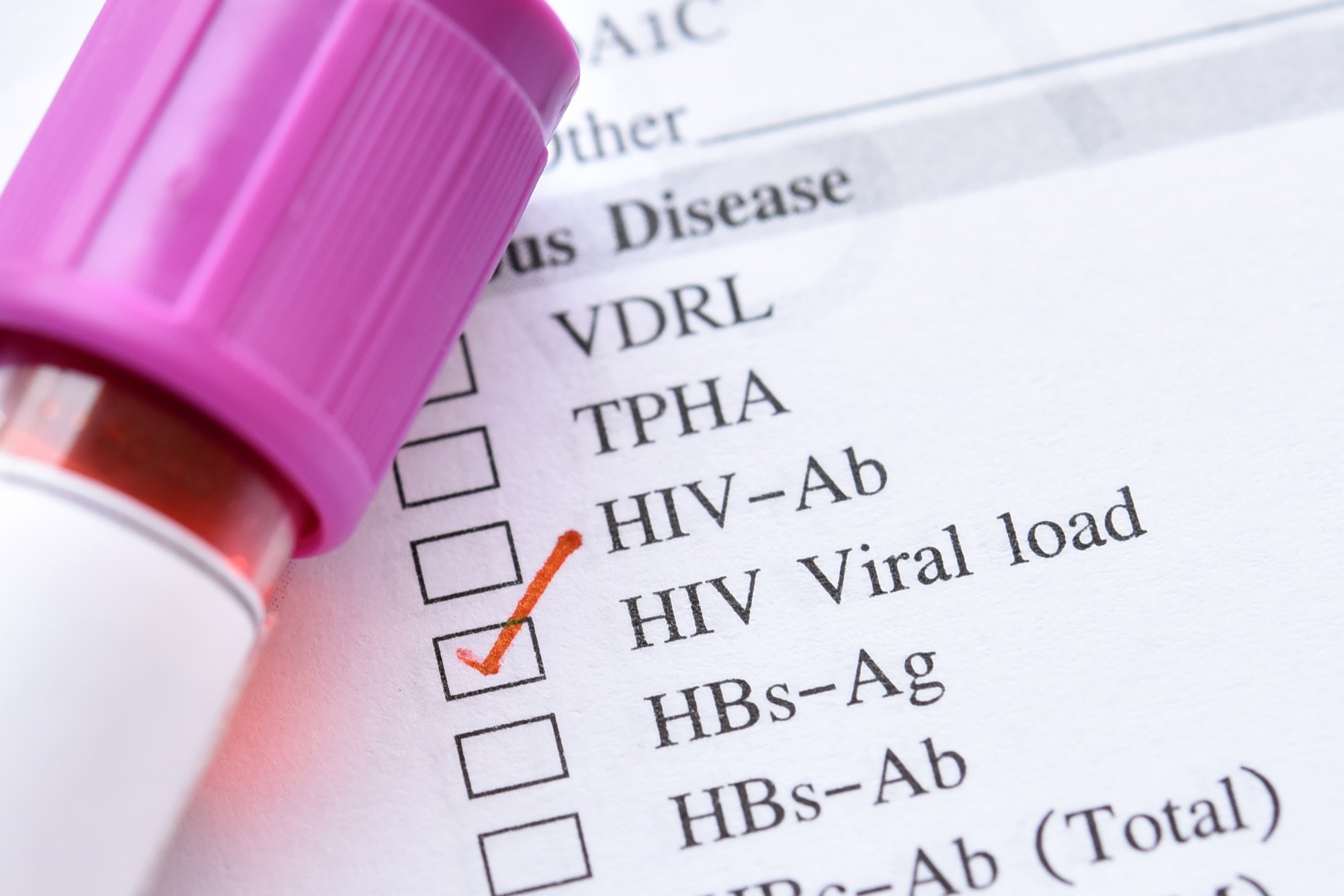 Early Diagnosis of HIV Linked With Higher Viral Loads Than Later Diagnosis