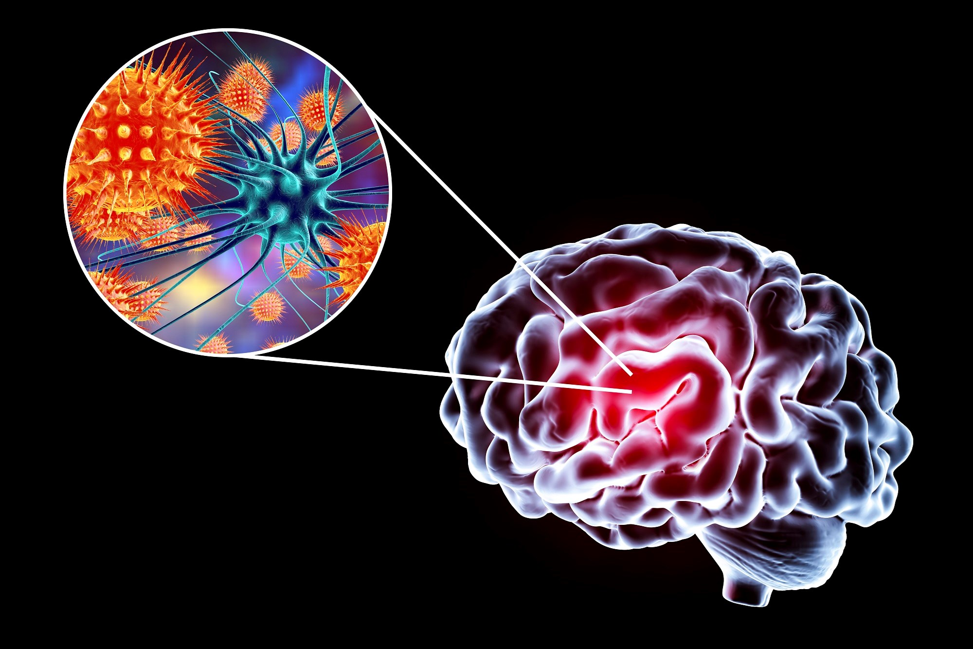 HCV Neuropsychiatric Symptoms Likely Linked to Virus' Effects on Brain Function