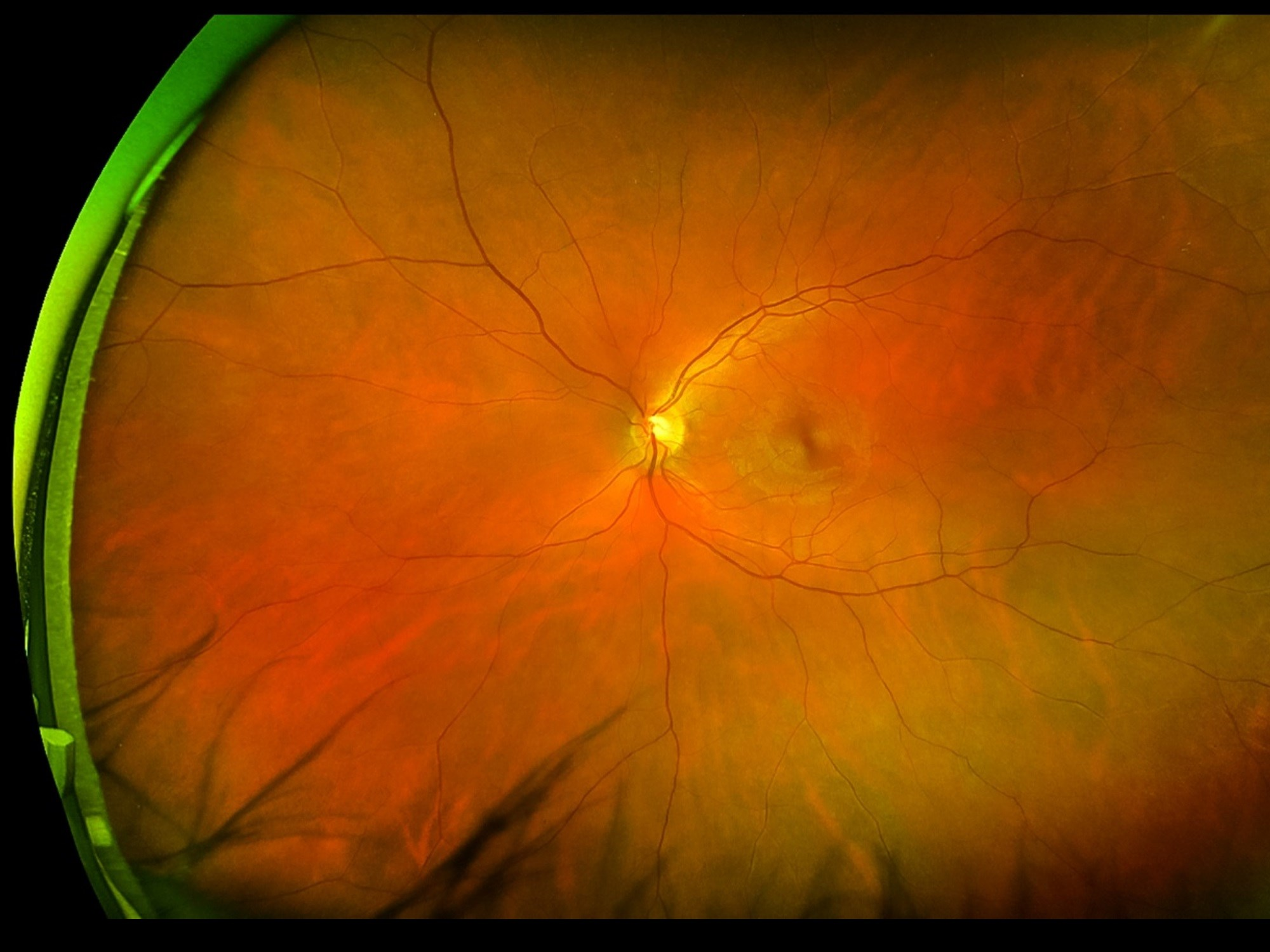 Patients with AIDS-related CMV retinitis receiving cART, but not specific anti-CMV therapy, were found to have active retinitis.