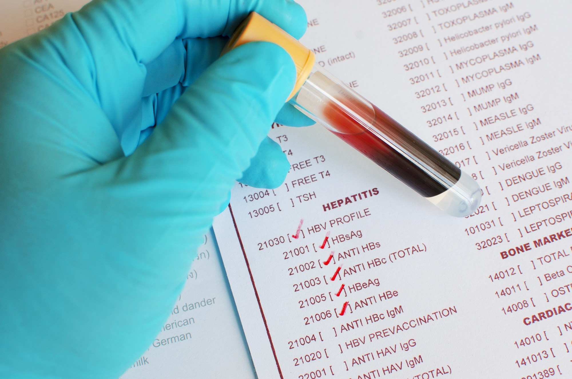Clinician Support Can Increase Viral Hepatology Screening in Migrants