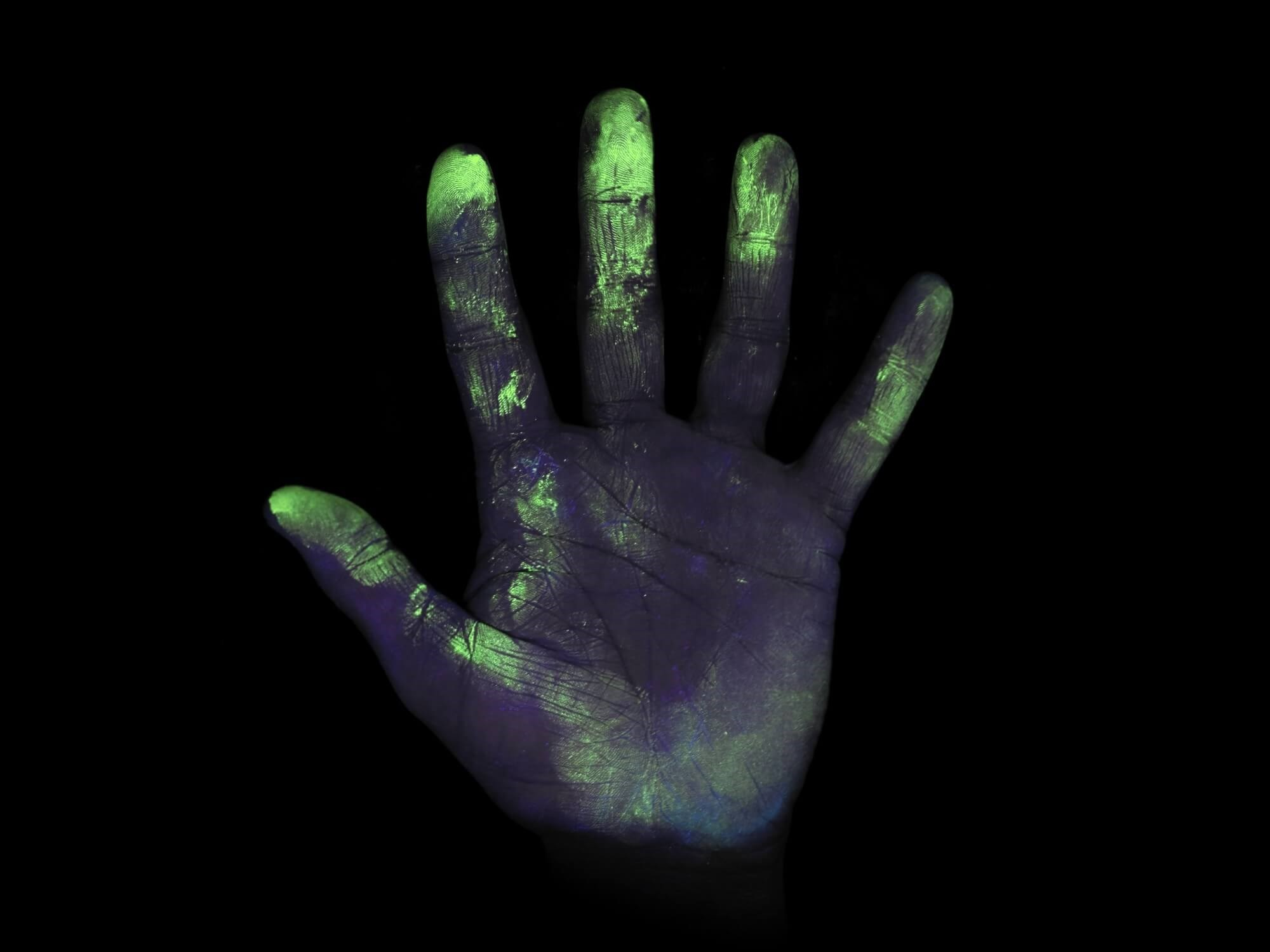 Hands Are Vehicles for Transmission of Streptococcus pneumoniae