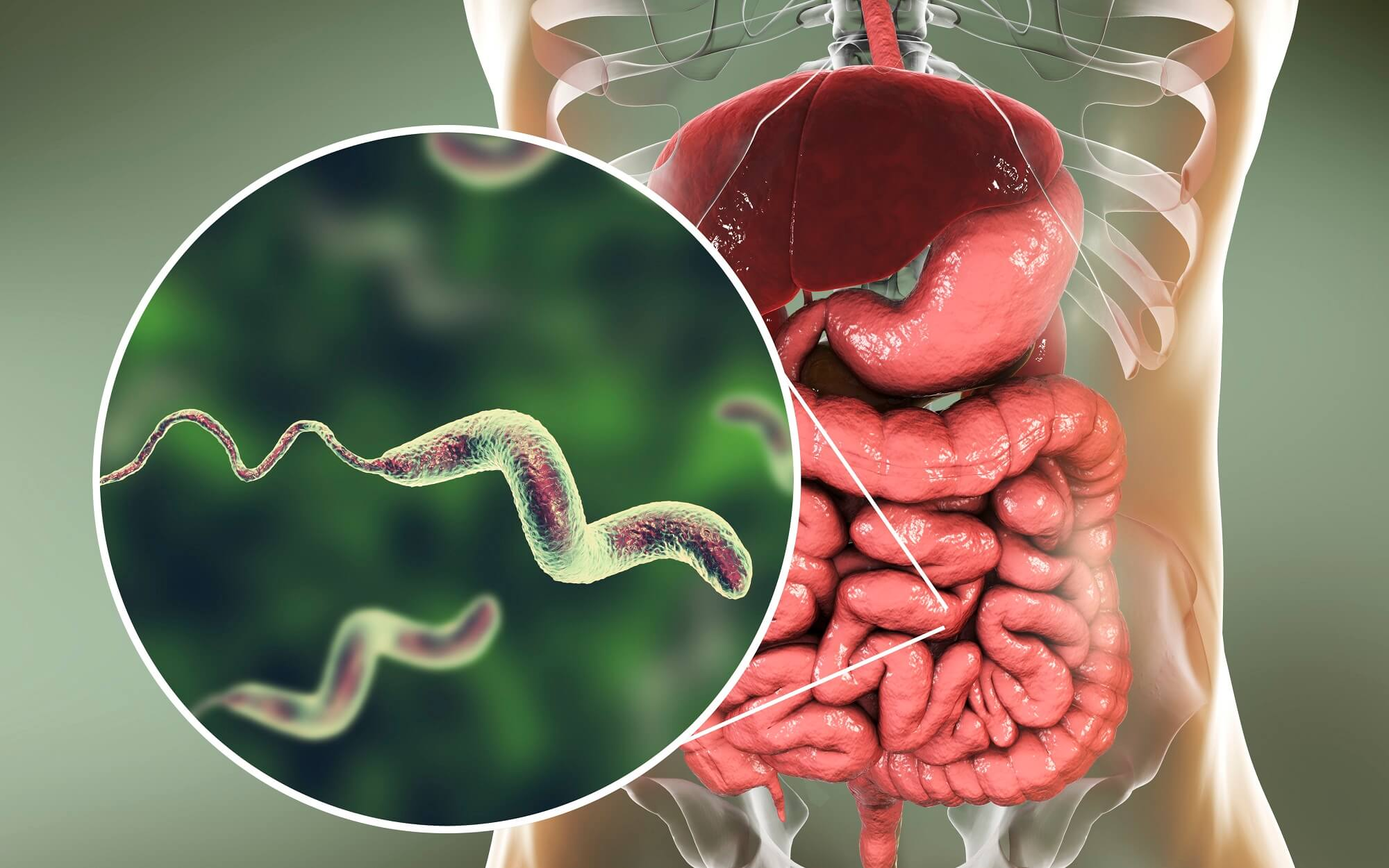 Diarrhea Remains Leading Cause of Global Mortality and ...