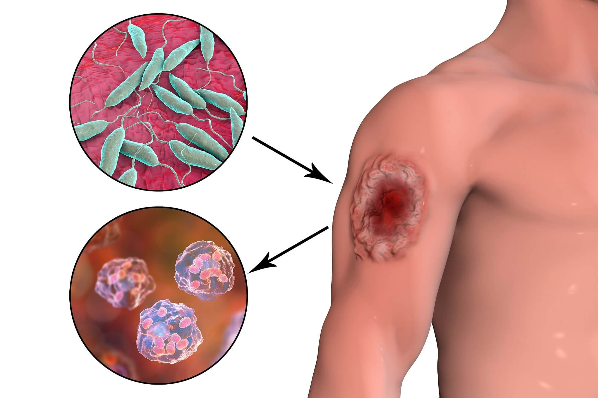 Treatment for cutaneous leishmaniasis caused by Leishmania braziliensis, using 15% paromomycin-Aquaphilic, was superior to a negative vehicle control.