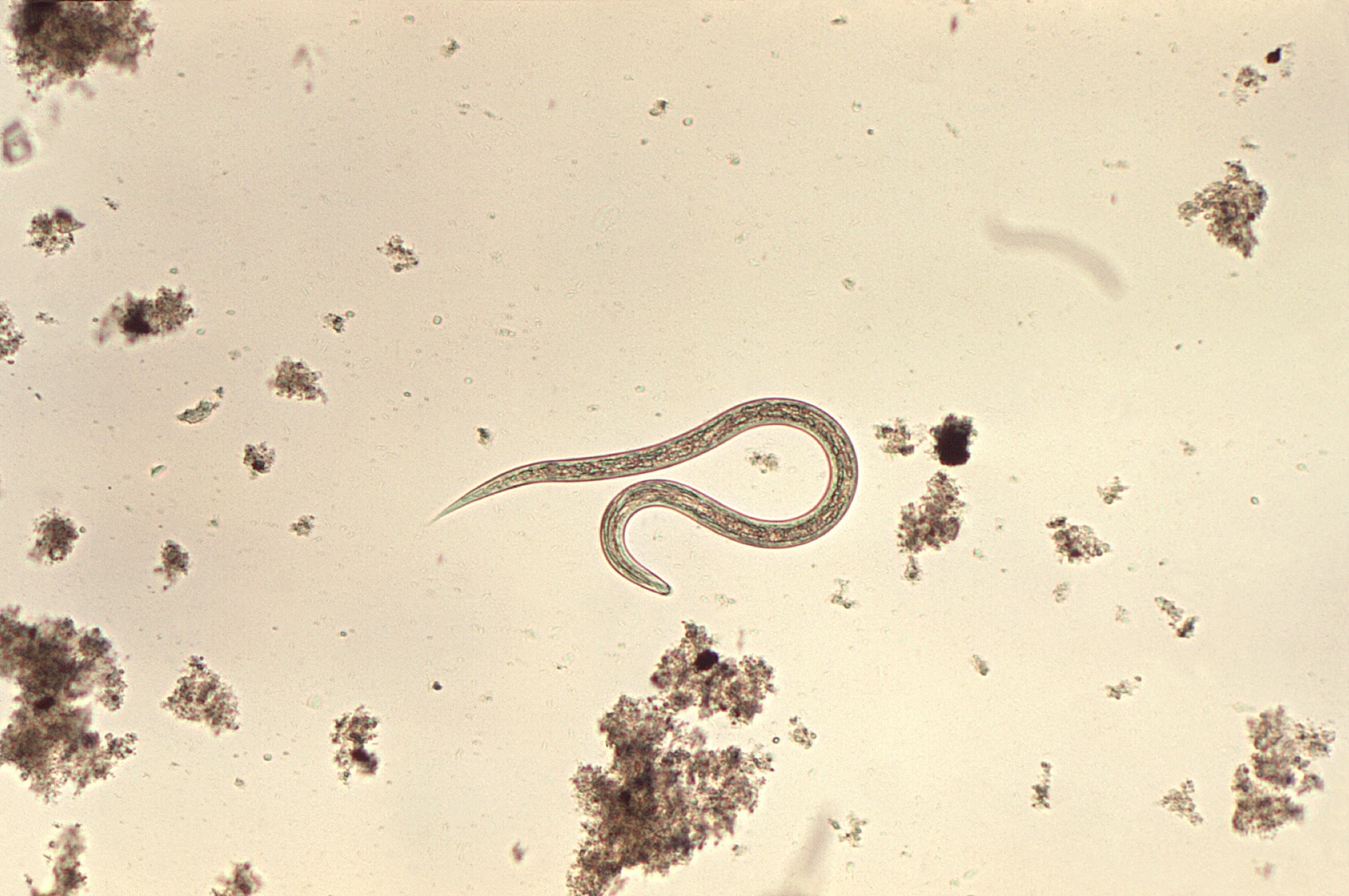 Safety of Escalating Doses of Tribendimidine in Children With Hookworm