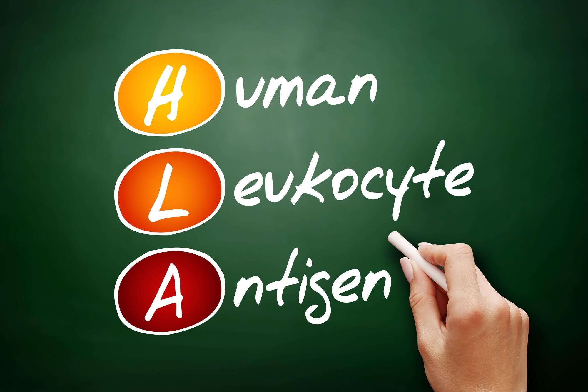 Human Leukocyte Antigen System Likely Plays a Role in Course of HBV Infections