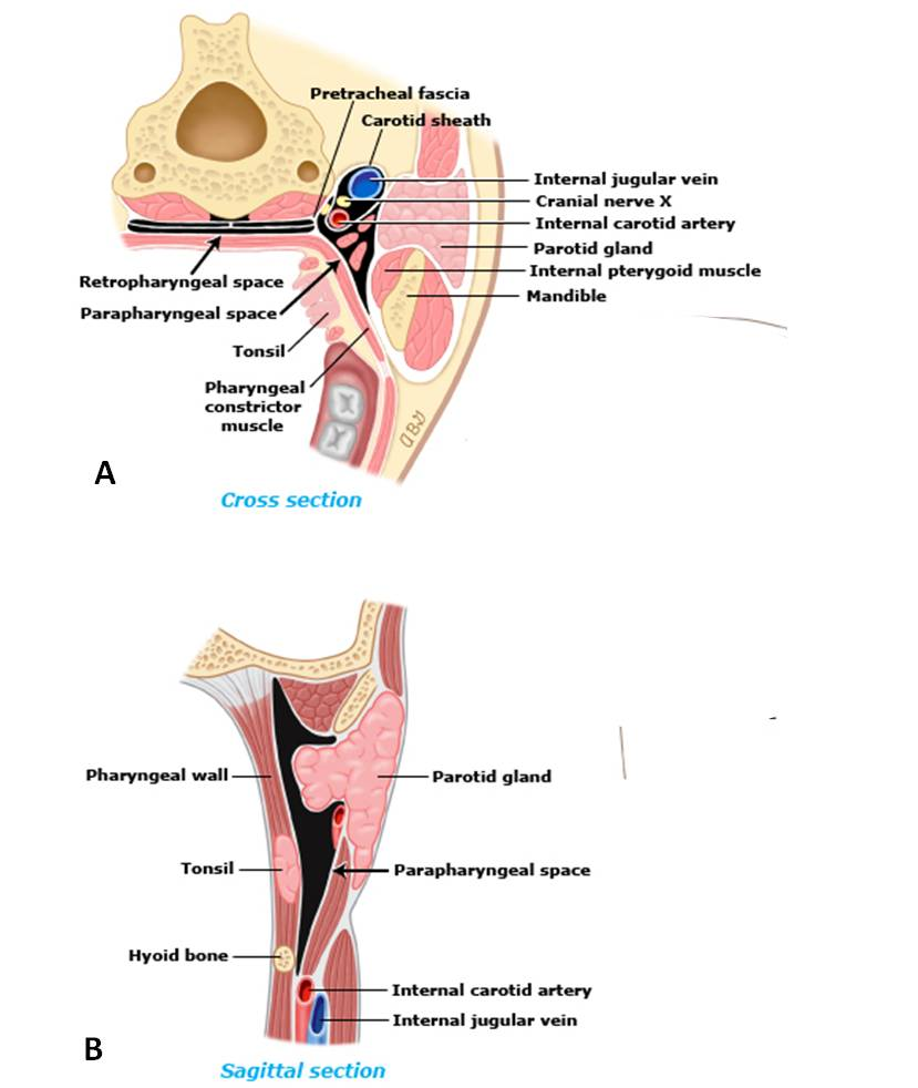 Infections of the oral cavity, neck, and head