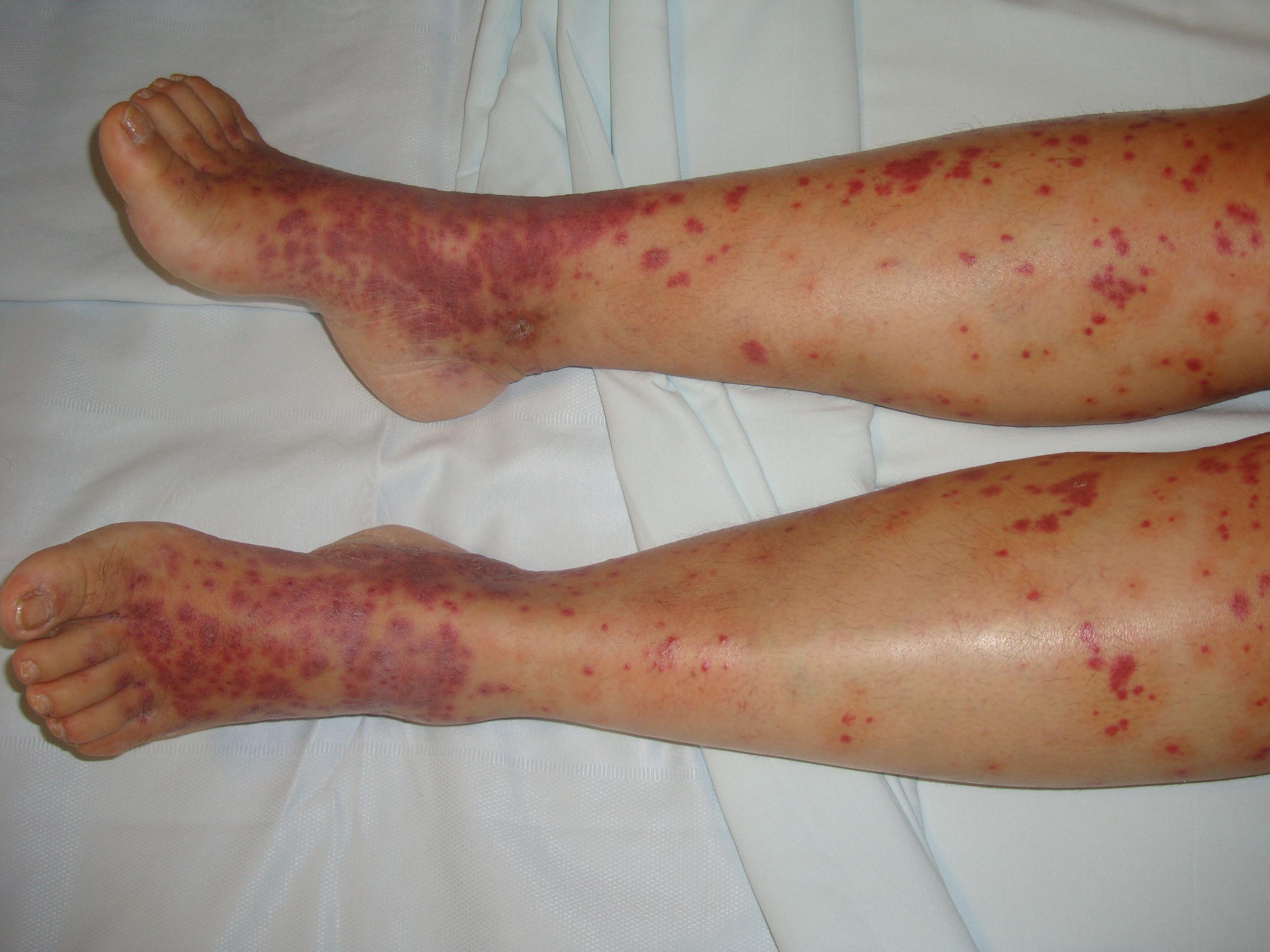 Transient anal rash