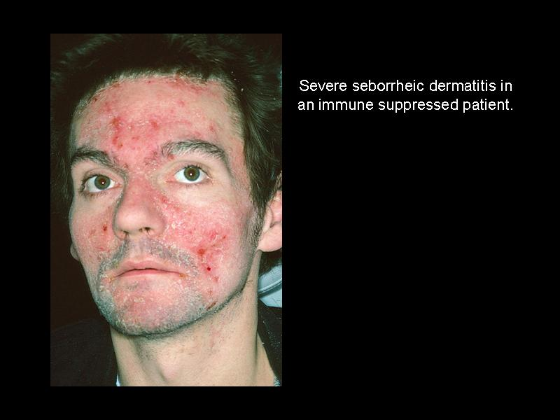 Dermatitis facial sebhorric photos 748